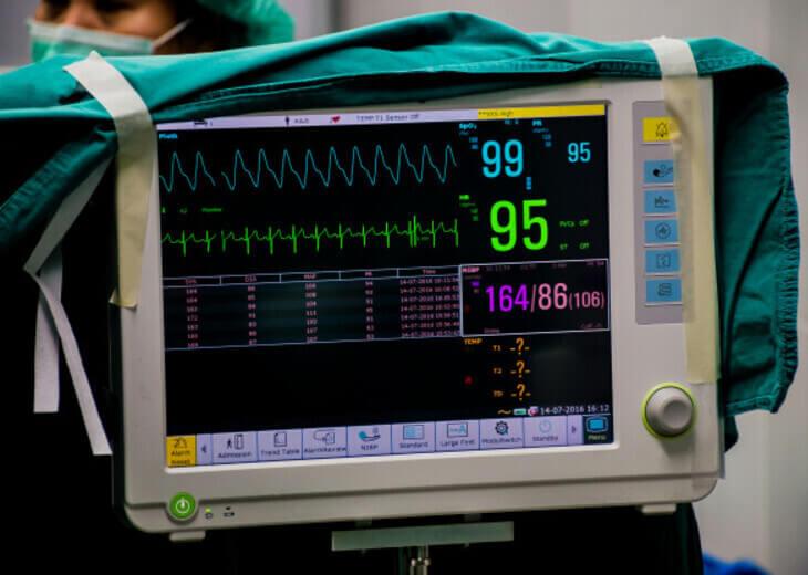 foto de monitor de sinais vitais